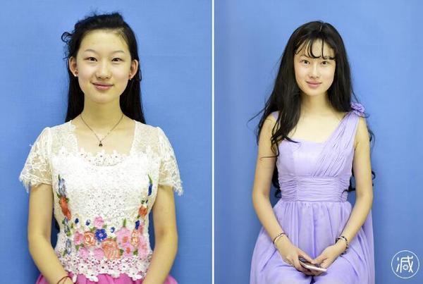 """19岁女孩整容记:她要变脸""""刘亦菲"""""""