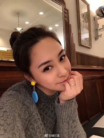 香港女星阿娇意外受伤动两次手术 头表层缝66针_图1-3