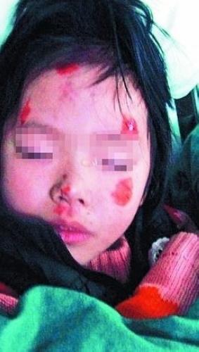父亲虐打女童后被碾死 暴打女儿丢出窗外突然发狂原因成谜