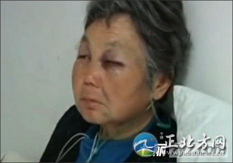 教授残忍殴打7旬老人监控录像曝光 拖进电梯猛踩头部